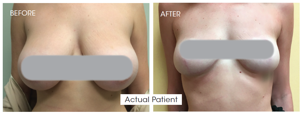Breast Reduction - Y Plastic