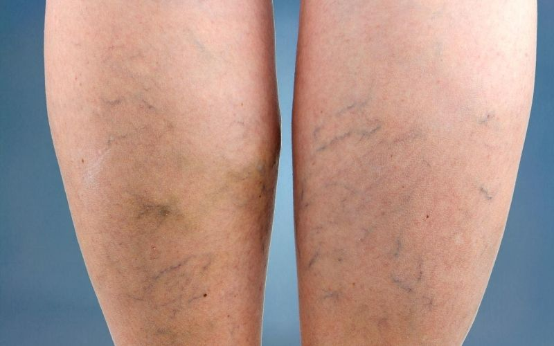 Spider veins on patient's legs.