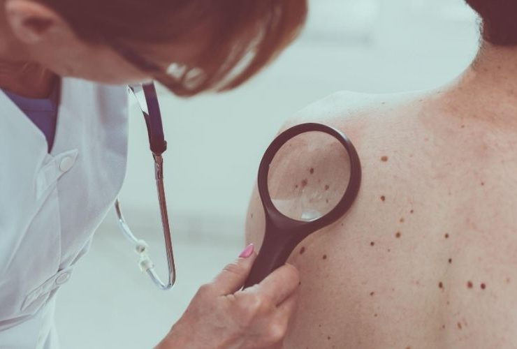 Doctor looking at skin moles.