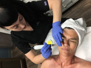 Microneedling Procedure from Overhead