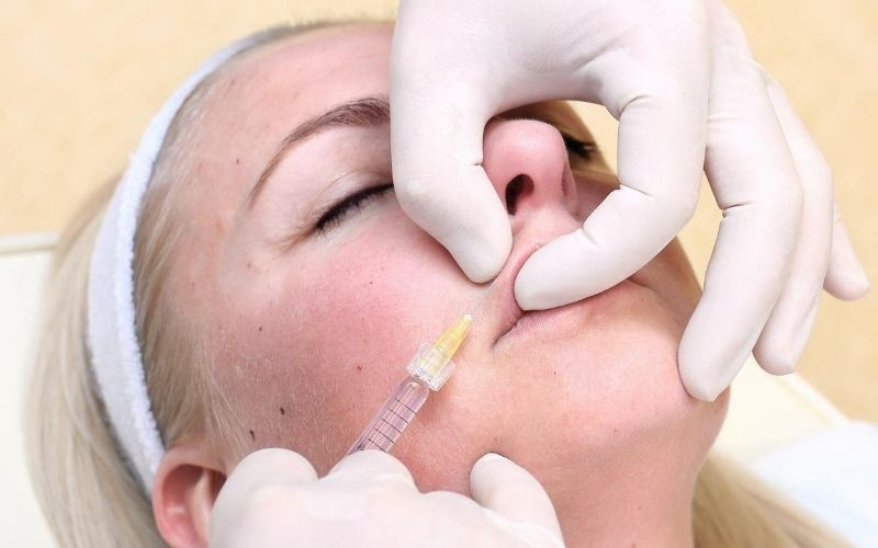 Woman getting fillers for her smile lines.