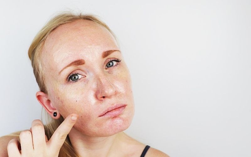 Woman pointing to her oily skin on face.