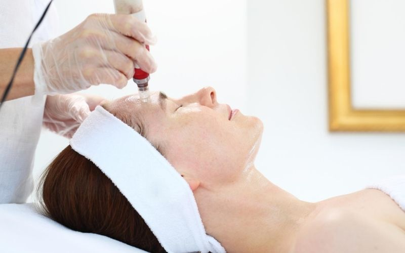 Woman receiving microneedling treatment.