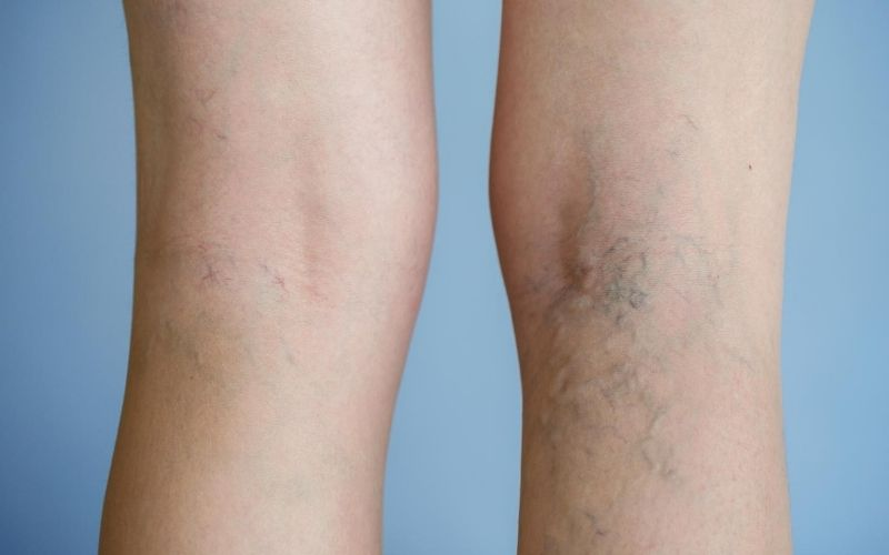 Photo of varicose veins on back of legs.