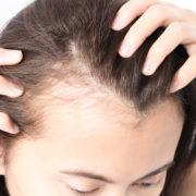 A Minca Miracle HairRegen
