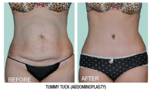 Dr. Larsen Tummy Tuck
