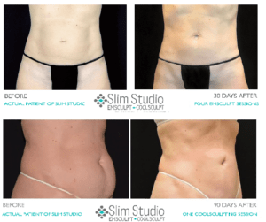 before and after slim studio