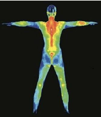 Spectrum Thermal Imaging 1