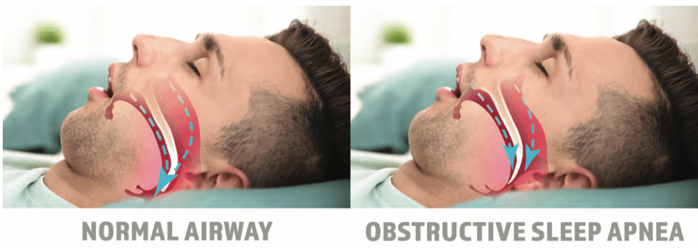 normal airway vs obstructive sleep apnea diagram